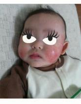 チビ姫ちゃんの乳児湿疹